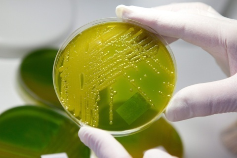 Lab Tests Fail to Prove Produce Is Source of E.coli Outbreak: Lab Tests Fail to Prove Produce Is Source of E.coli Outbreak