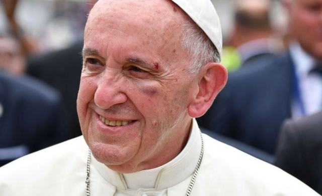 Bulgaria: Pope Francis Suffered Light Injury in a Collision Incident in Colombia
