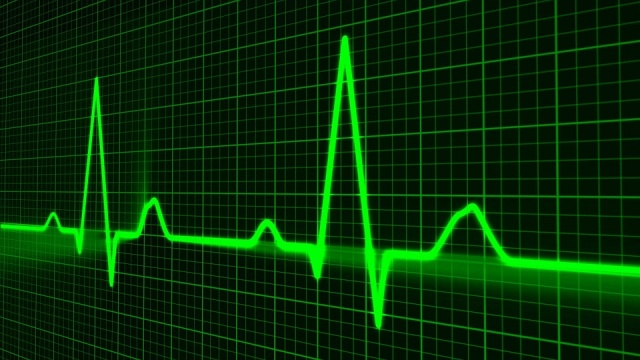 Bulgaria: Nearly 153,000 Bulgarians Suffer From Cardiovascular Diseases